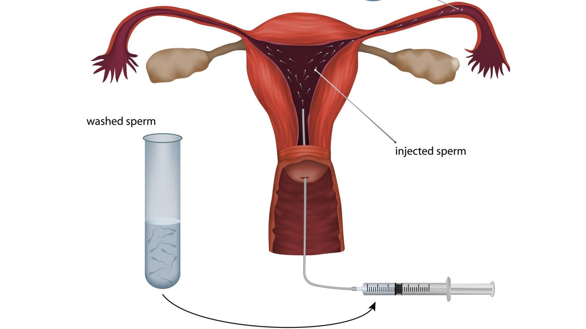 Подготовка мужчины и женщины к искусственной инсеминации