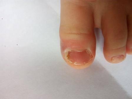 Что делать если нарывает палец возле ногтя на руке у новорожденного