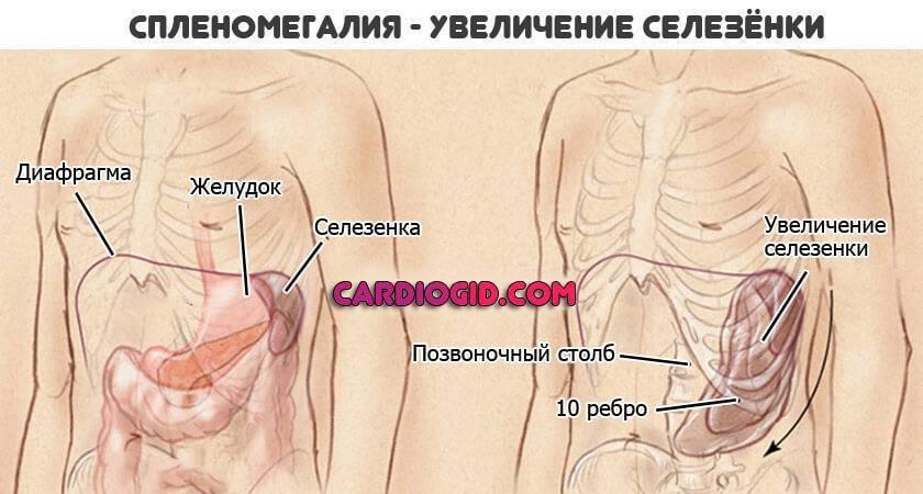 Увеличена селезенка у ребенка: причины, размеры в норме - таблица, почему диагностируется увеличение у грудничка