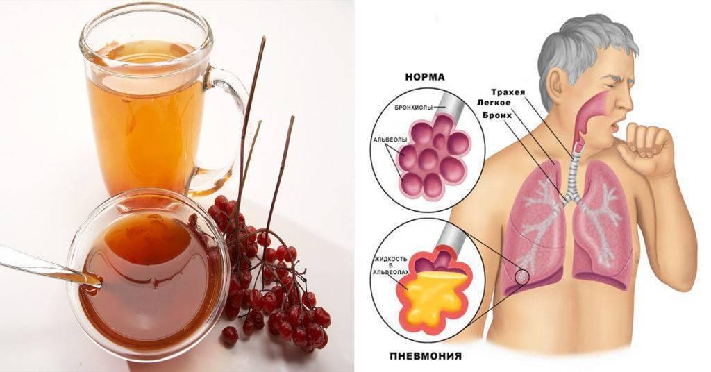 Трахеобронхит — виды, симптомы и лечение, препараты