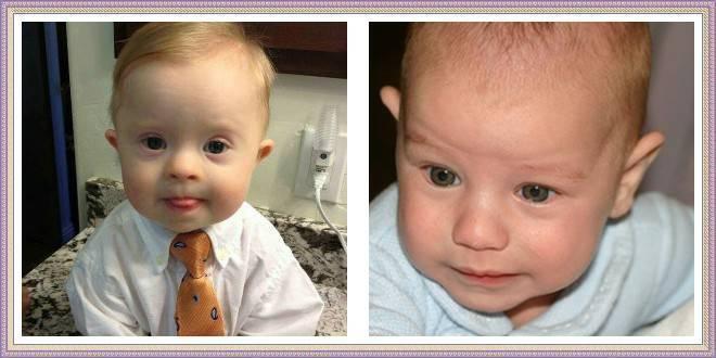 Причины синюшности под глазами у младенца и подростка, методы лечения ребёнка от синяков под глазами