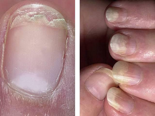 У ребенка слоятся ногти на руках: причины и что делать в домашних условиях