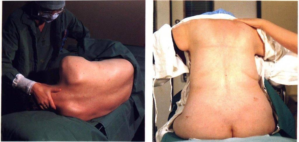 Болит спина после эпидуральной анестезии: нормально ли это и что делать? | после родов | vpolozhenii.com