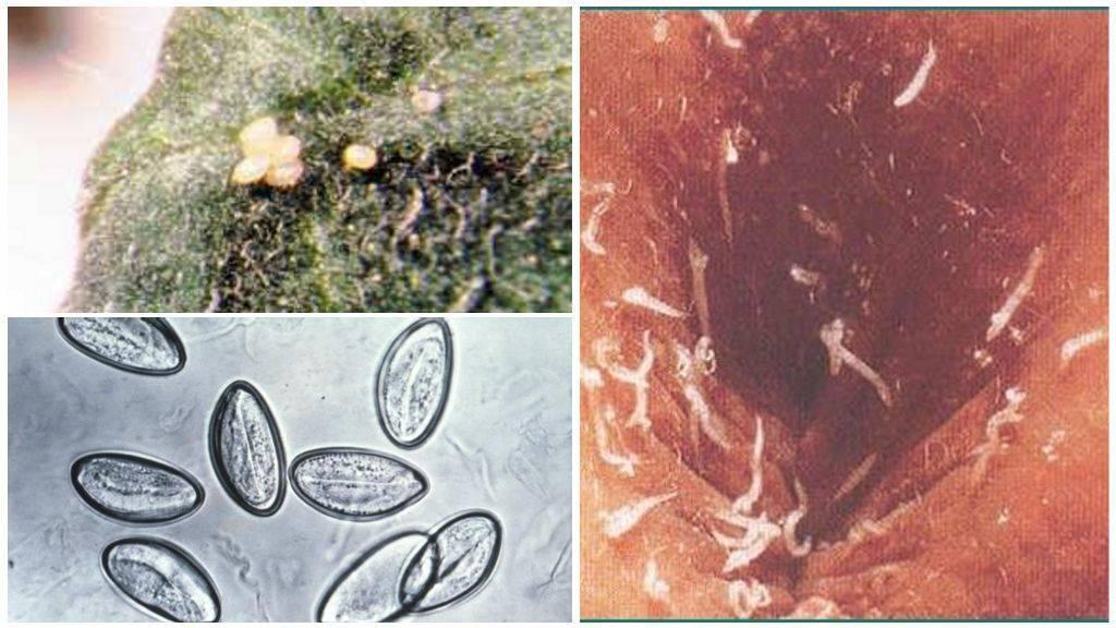 Глисты в кале у детей и взрослых - пути заражения, симптомы, виды паразитов, диагностика и лечение. как выглядят яйца глистов в кале у детей: симптомы и лечение различных видов паразитов белые червяки в кале у взрослого причины