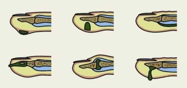 Как лечить нарыв на пальце возле ногтя