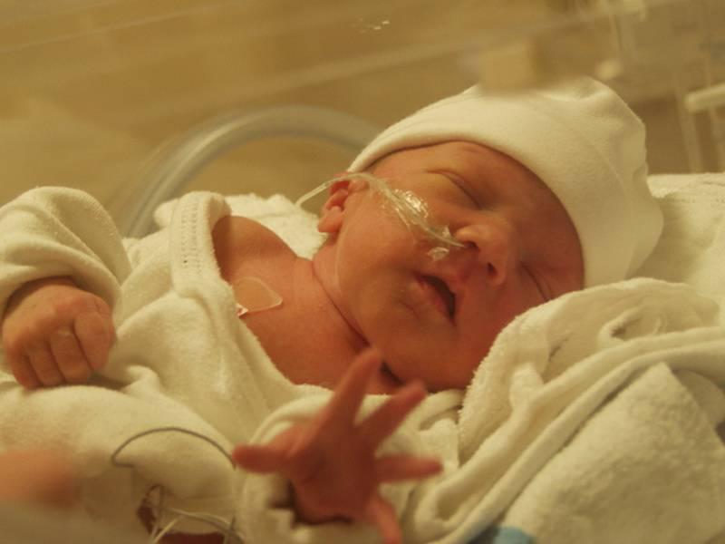 Что такое асфиксия в родах. что такое асфиксия новорожденного: последствия для ребенка, лечение и профилактика - зубной врач