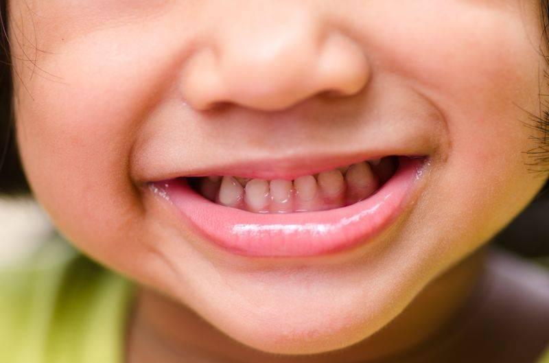 Как лечить кариес молочных зубов у детей: особенности лечения