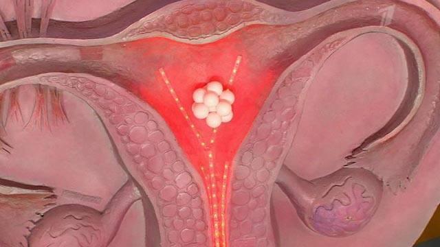 Боли при овуляции у женщин, до и после нее: сколько дней длятся, какие бывают в суставах во время этого периода, могут ли возникать тянущие ощущения в кишечнике?