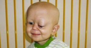 Лимфангиома: симптомы, лечение, операция, последствия у детей и взрослых