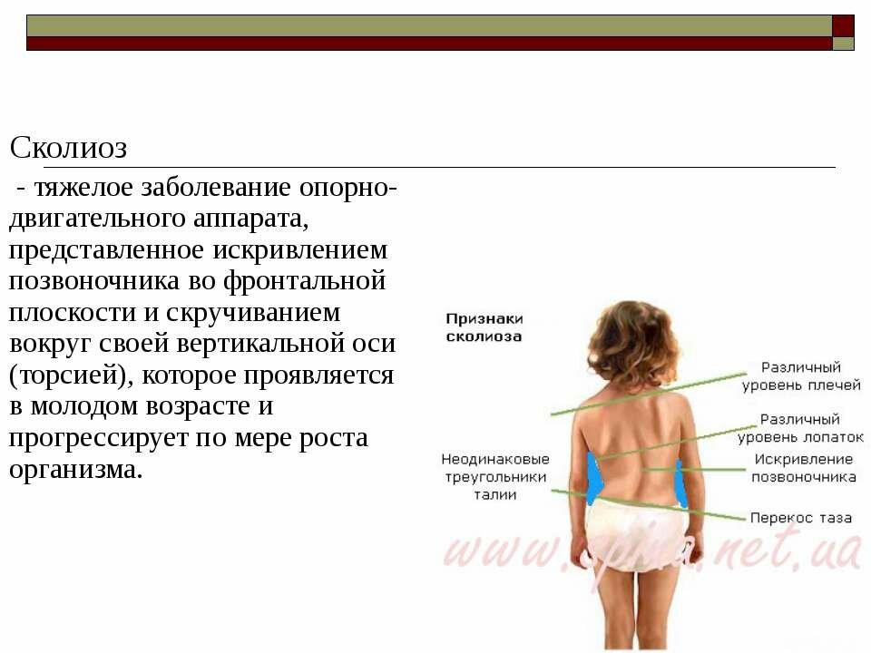 Меры профилактики сколиоза у детей и взрослых