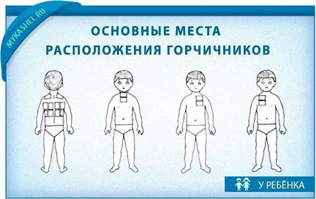 Горчичники при кашле - инструкция по применению: куда и как правильно поставить, сколько держать, принцип действия и противопоказания