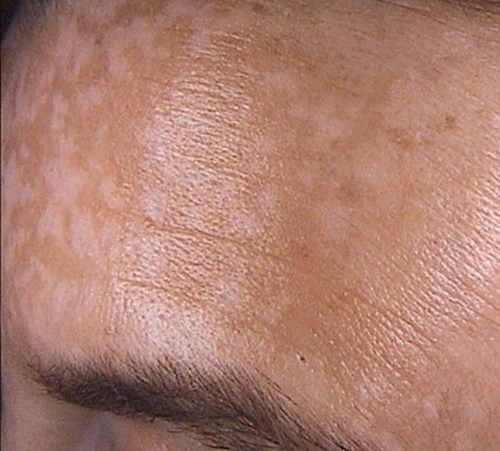 Круглое розовое, белое пятно на коже с красным ободком чешется: фото у ребенка