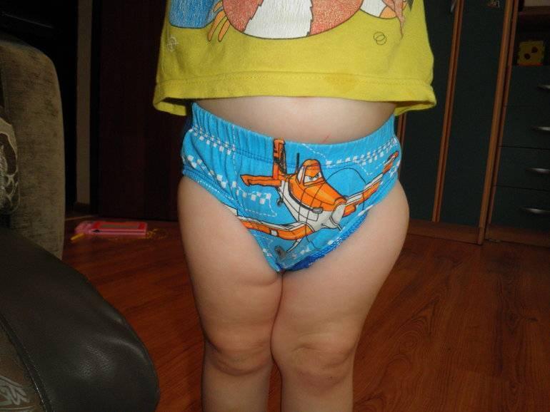 У ребенка болит нога после акдс, от прививки он хромает и не может встать - что делать? | прививки | vpolozhenii.com
