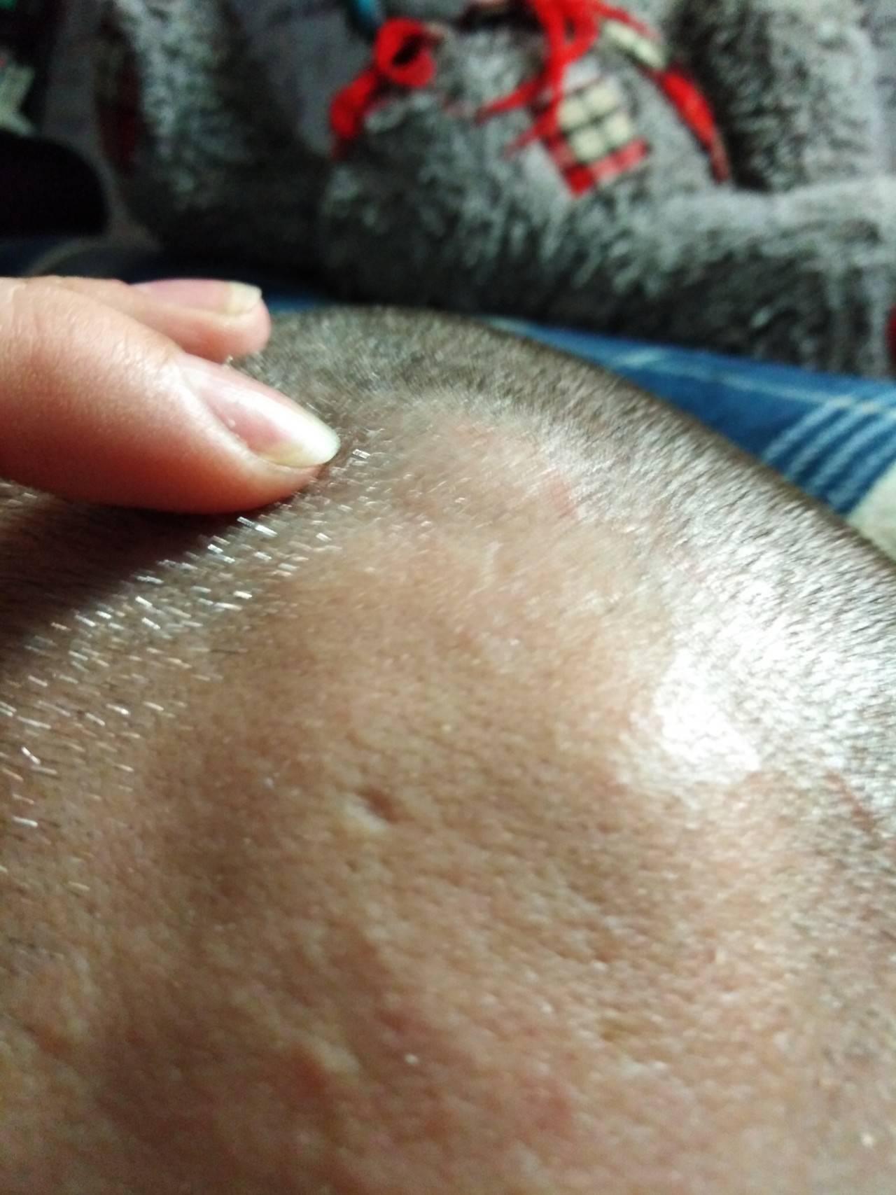 Шишка у ребенка на голове после падения: первая помощь и лечение