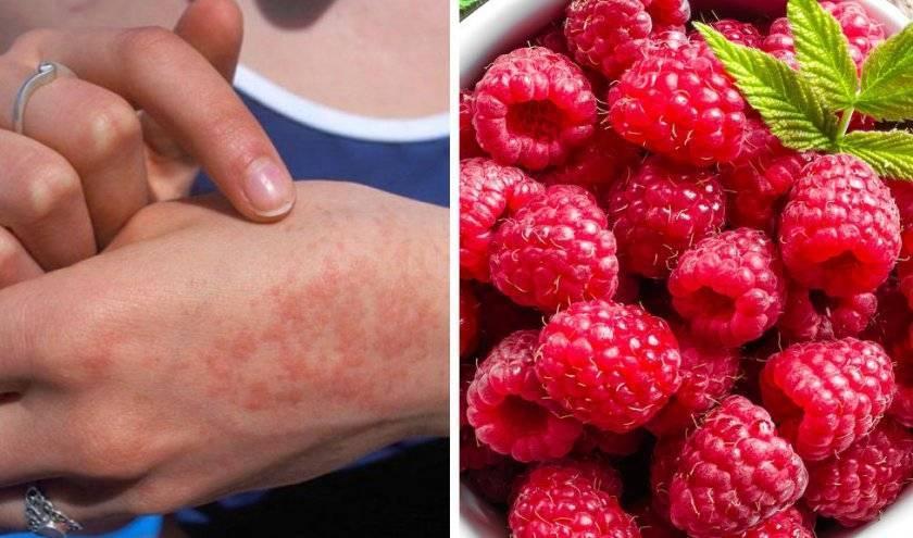 Аллергия на клубнику (17 фото): как проявляются симптомы у ребенка и взрослого, аллергенная клубника или нет