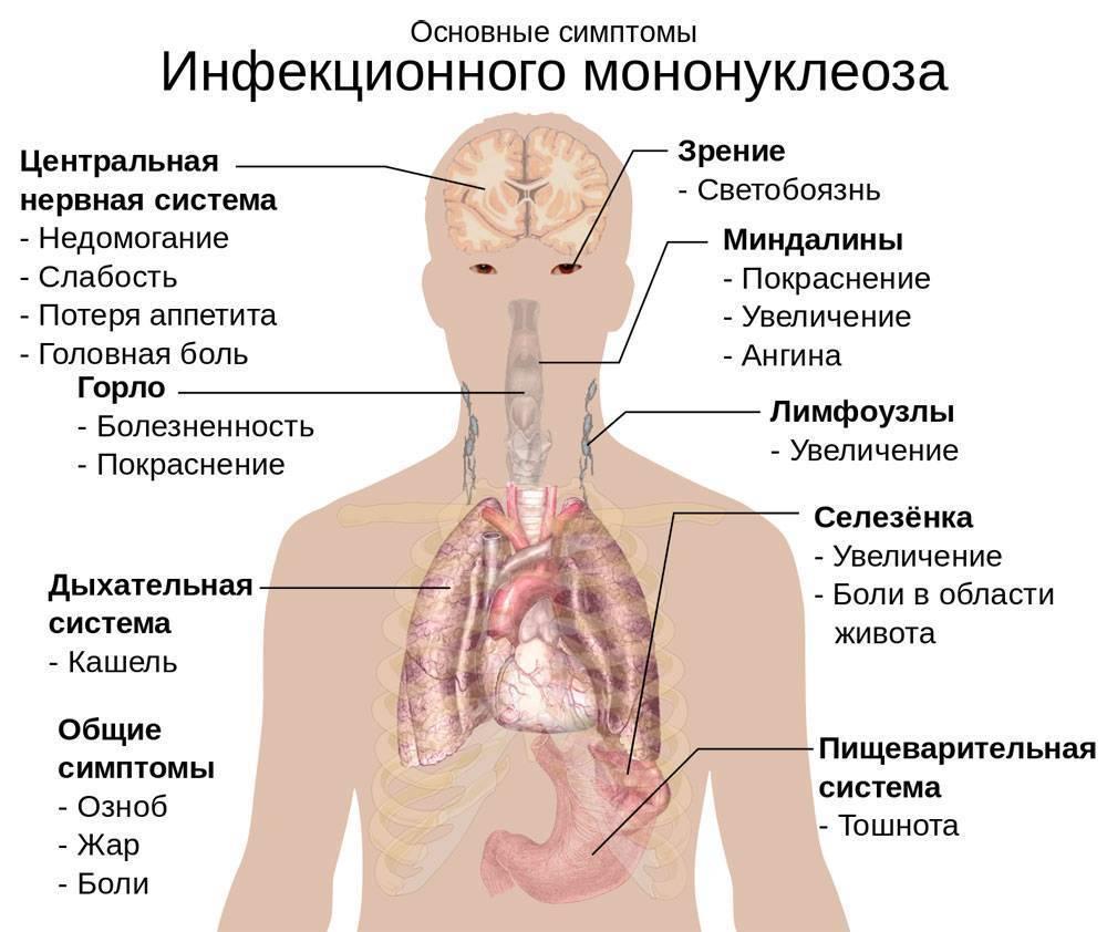Инфекционный мононуклеоз у детей – что это за болезнь, симптомы и лечение, профилактика
