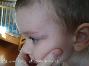 Последствия и лечение при ударе головой (затылком)