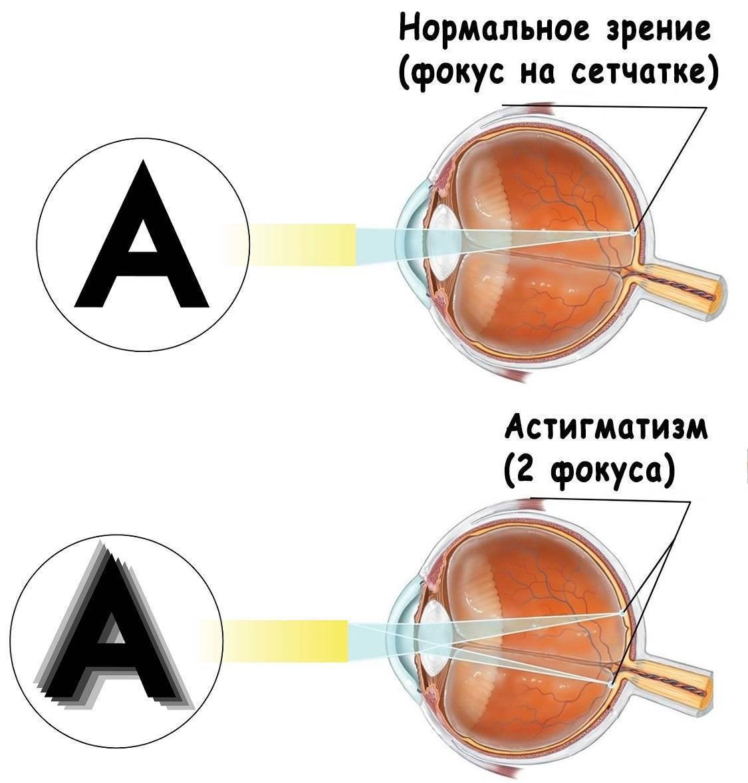 Астигматизм глаз у детей и подростков: лечение, симптомы, диагностика — gorps.ru