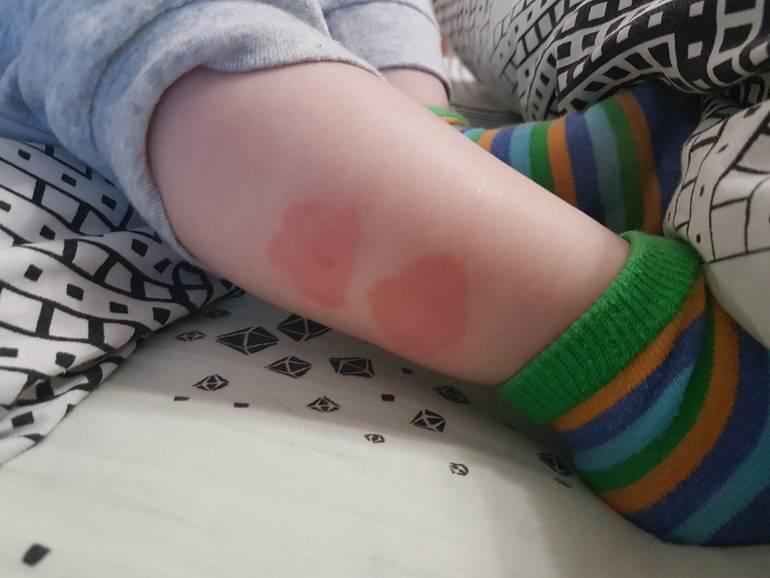 Аллергия на укусы комаров и других насекомых у детей: фото, лечение ребенка