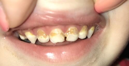 Желтые пятна на зубах: причины появления и способы устранения