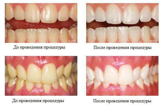 Серебрение зубов у детей - фото до и после, фторирование как альтернатива | процедуры | vpolozhenii.com