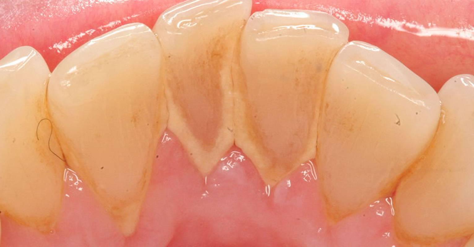 Желтый налёт на зубах у ребёнка - причины и лечение