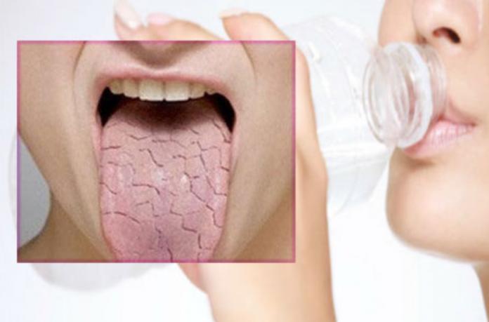 Сухость во рту - причины и устранение ксеростомии
