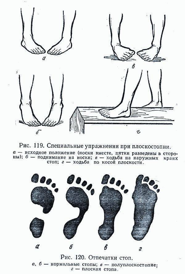 Плосковальгусные стопы у детей массаж - видео уроки
