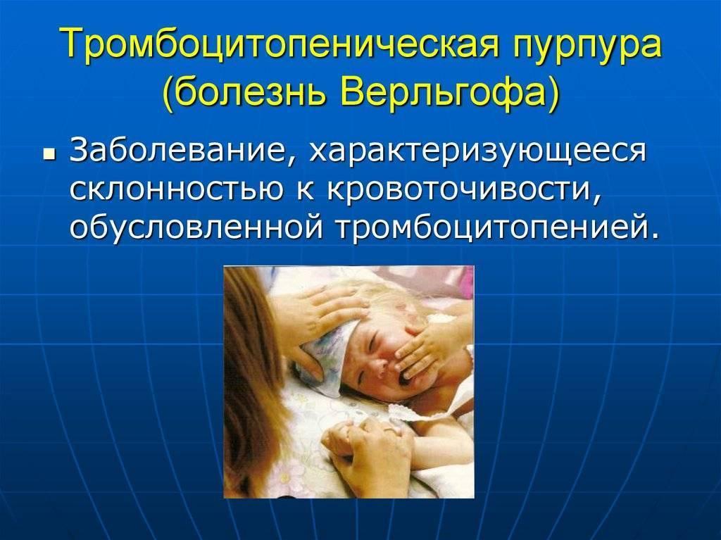 Тромбоцитопеническая пурпура у взрослых симптомы и лечение