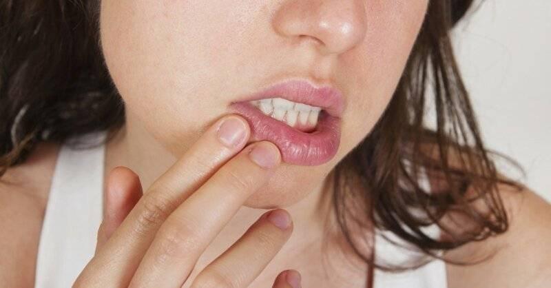 Почему возникают заеды в уголках рта у детей и как от них избавиться