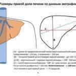 Расшифровка узи печени: основные показатели нормы