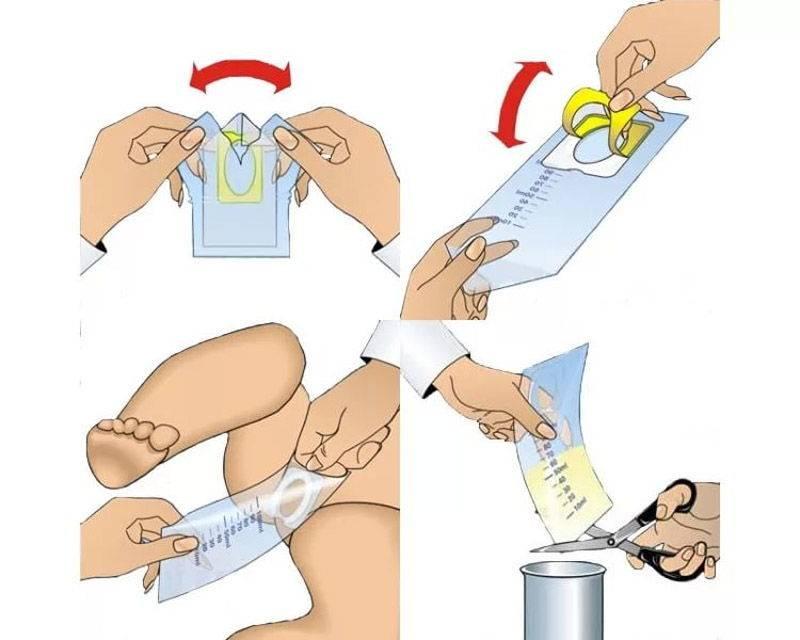 Как собрать анализ мочи у грудничка: 3 способа и мнение специалиста о каждом