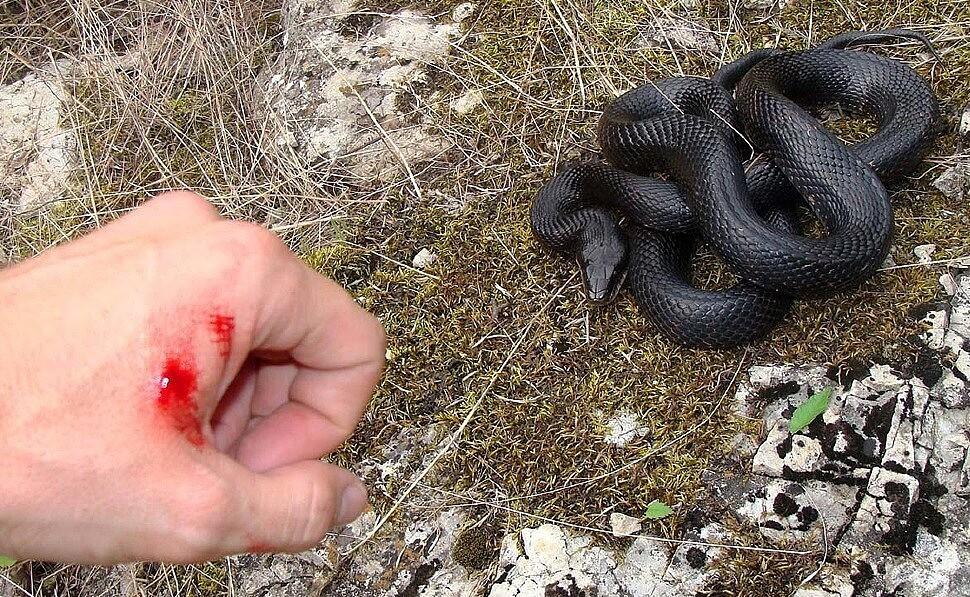Если ребёнка укусила змея