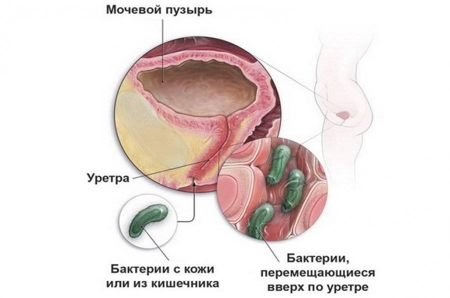 Цистит у мальчиков: симптомы, диагностика, лечение