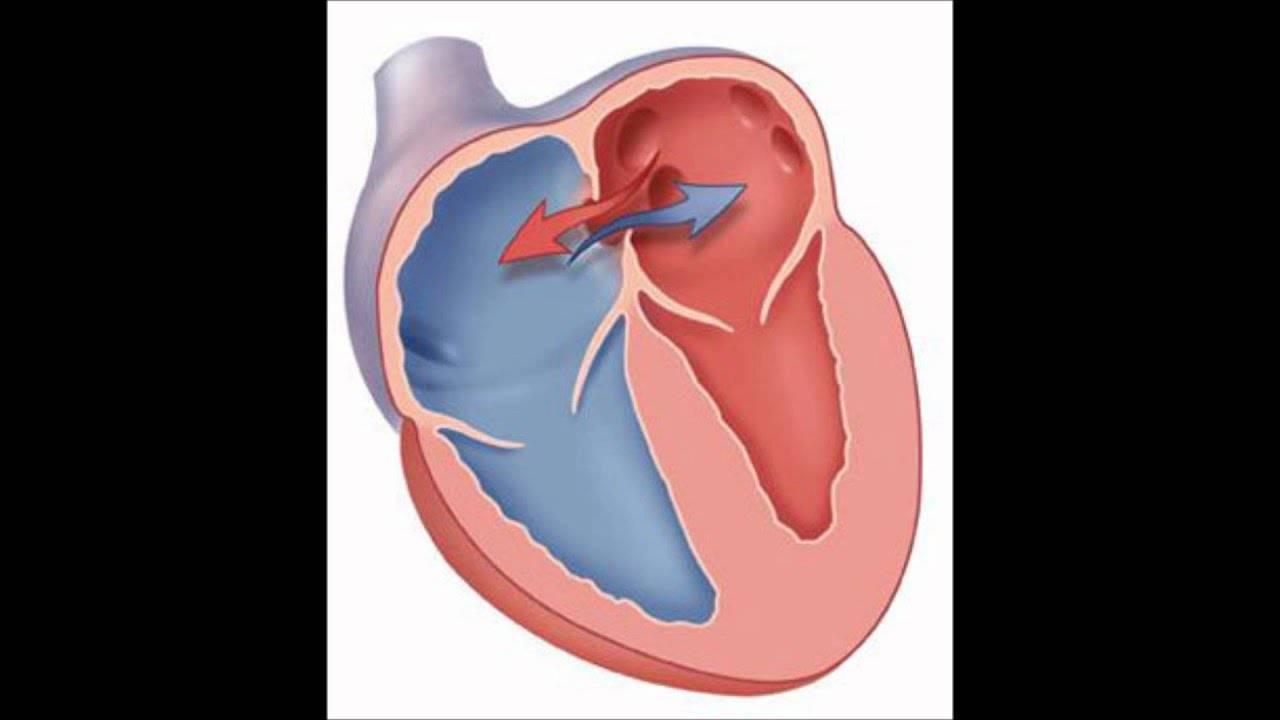 Открытое овальное окно в сердце: причины, симптомы, лечение и прогнозы