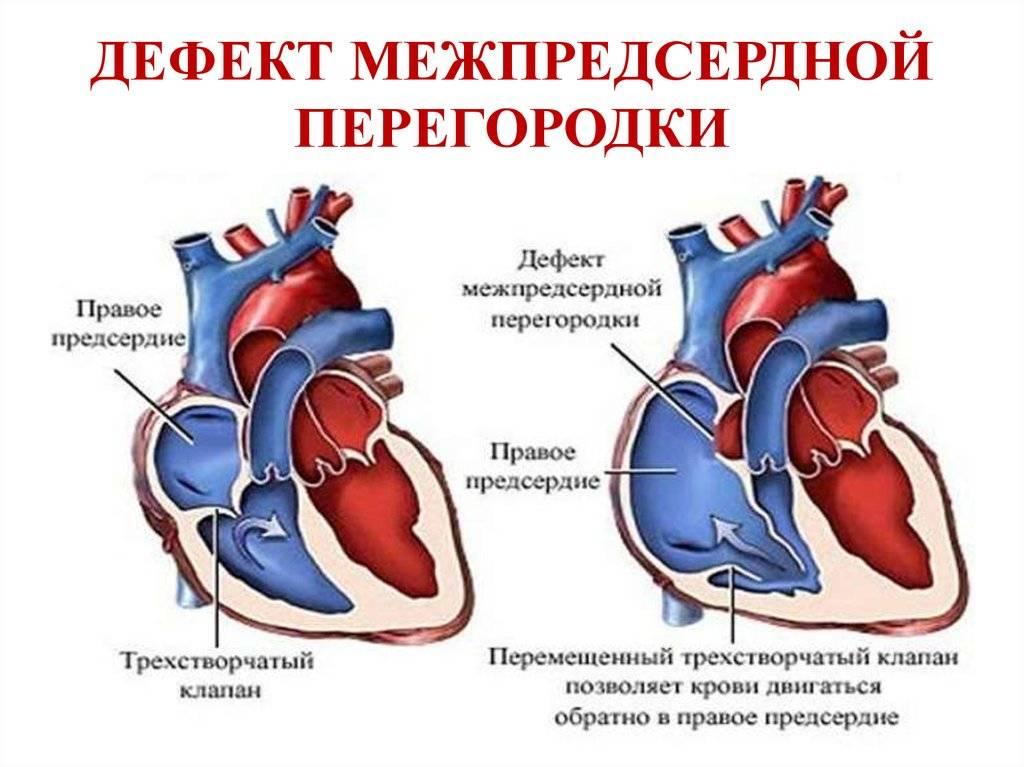 Перегородка в сердце у новорожденного