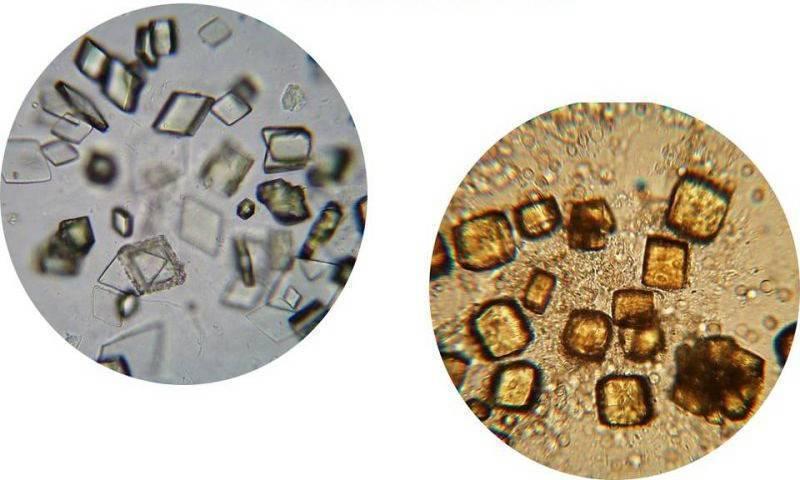 Фосфаты в моче у ребенка: причины образования повышенного количества, норма солей
