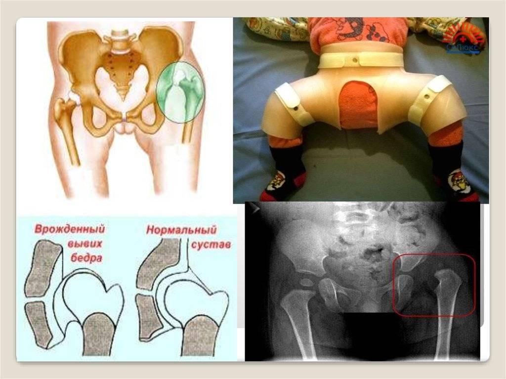 Реактивный артрит тазобедренного сустава у детей: особенности, симптомы и лечение | все о суставах и связках