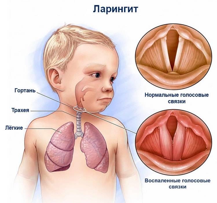 Причины возникновения ангины у грудничков до года, виды патологии и сопутствующие симптомы, лечение и профилактика
