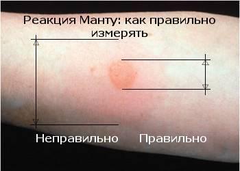 Реакция манту у детей: это прививка или просто проба? как определить норму манту и что делать  в последующие дни после укола.