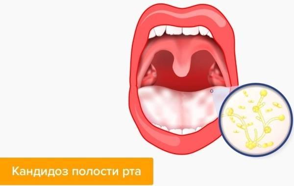 Кандидоз полости рта: лучшие методы устранения боли и причины появления болезни