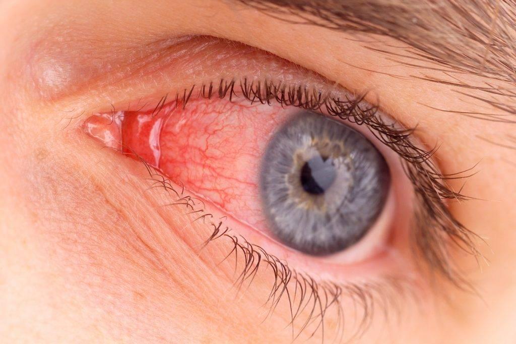 Лопнул сосуд в глазу – что делать, как определить причину и устранить кровоизлияние?