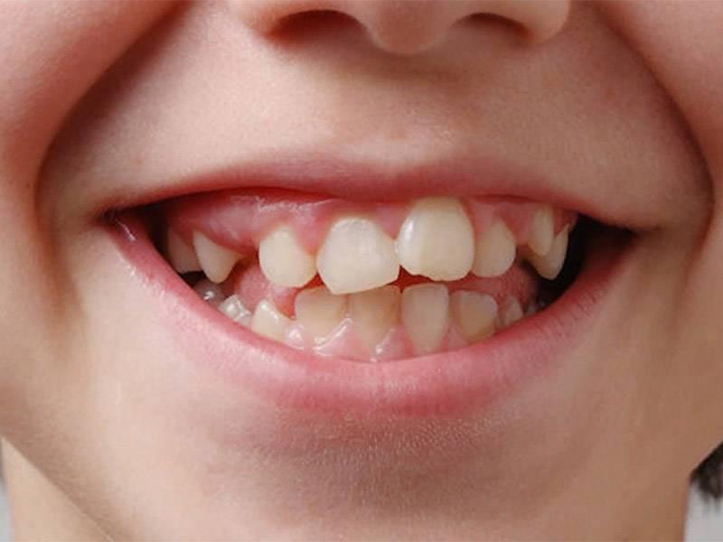 Как выровнять зубы без брекетов — выпрямление клыков без брекет-систем