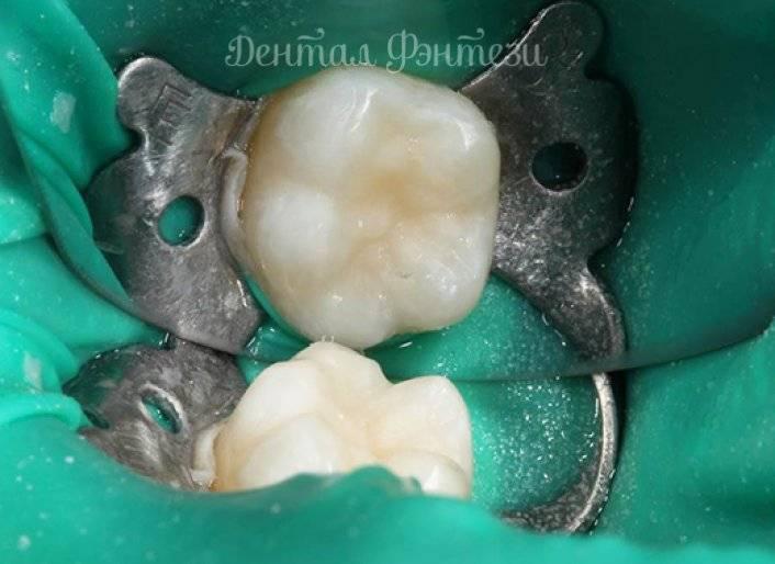 Особенности пульпита молочных зубов у детей