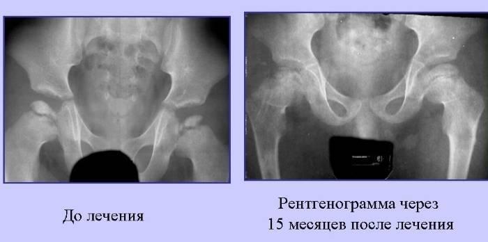 Болезнь пертеса тазобедренного сустава у детей диагностика