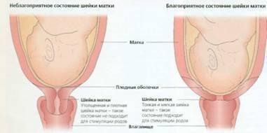 Чем грозит короткая шейка матки при беременности и что делать?
