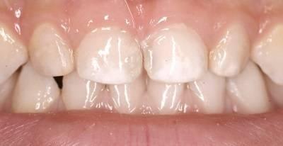 Серебрение зубов у детей: польза или вред. процедура серебрения молочных зубов у детей при кариесе: преимущества метода и альтернативы