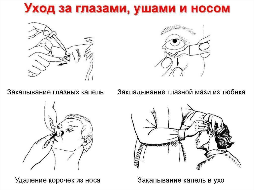 Техника закапывания капель в глаза, нос и ухо ребенку раннего возраста. алгоритм закапывания капель в глаза, нос и уши - лечим сердце