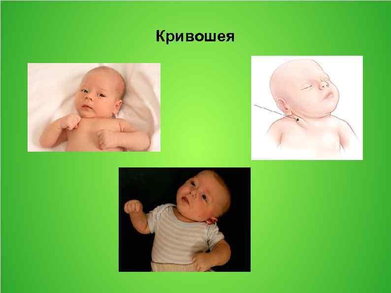 Родовая травма шейного отдела позвоночника у новорожденных признаки