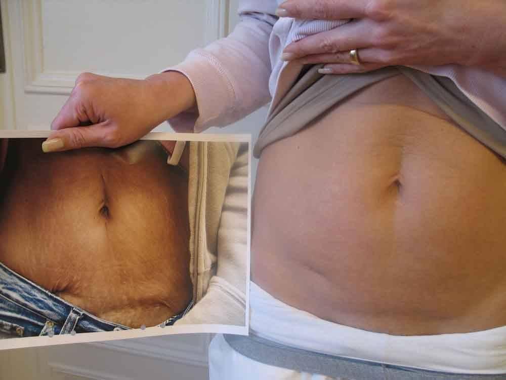 Пупочная грыжа и кесарево сечение
